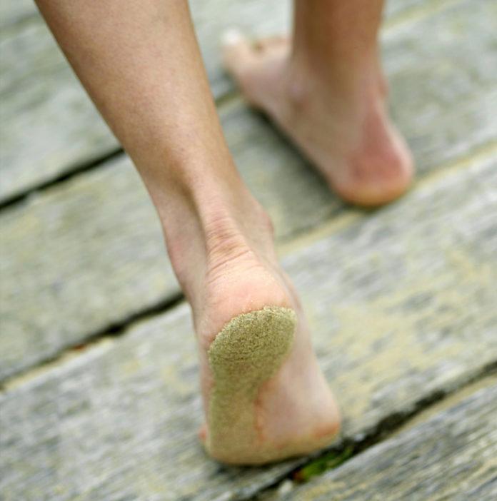 La teigne chez l'humain: symptômes, traitement et prévention