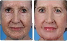 J'utilise le produit de Perle BLeueActive Retention Age depuis deux semaines et jusqu'à présent,