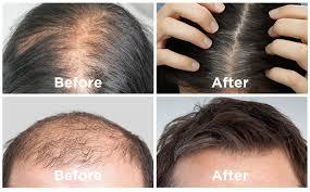 Hair revital x - pas cher - forum - en pharmacie