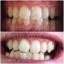 Snowhite Teeth Whitening – prix – pas cher – effets