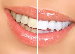 Snowhite Teeth Whitening - blanchissement dentaire – avis – composition – effets secondaires
