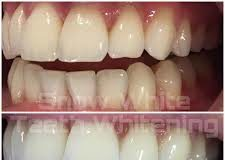 Snowhite Teeth Whitening – dangereux – France – comprimés