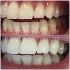 Snowhite Teeth Whitening – dangereux – France – comprimés